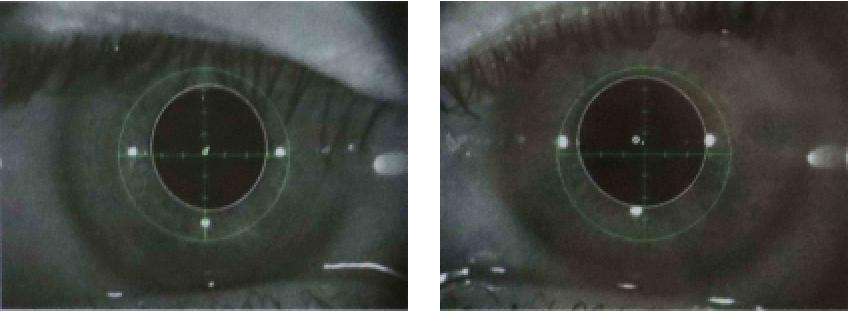 検査中は近赤外線カメラで左右眼の瞳孔を個別にモニター